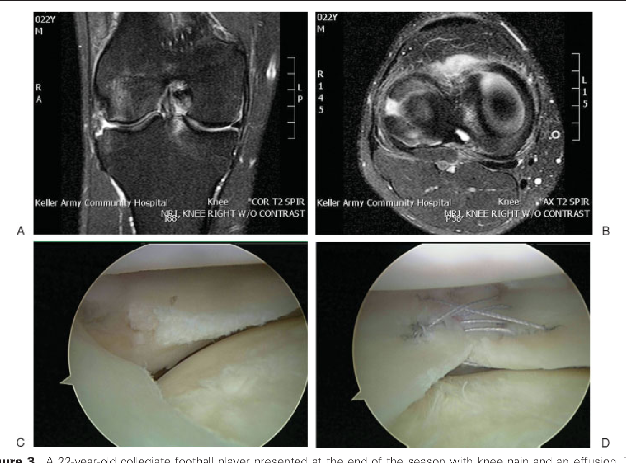 Figure 3 from Treatment of meniscal injuries in young athletes