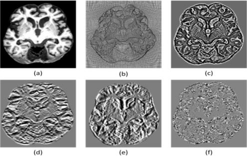 Figure 4 for Knowledge AI: New Medical AI Solution for Medical image Diagnosis