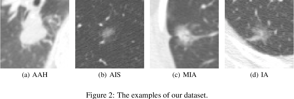 Figure 2 for Invasiveness Prediction of Pulmonary Adenocarcinomas Using Deep Feature Fusion Networks