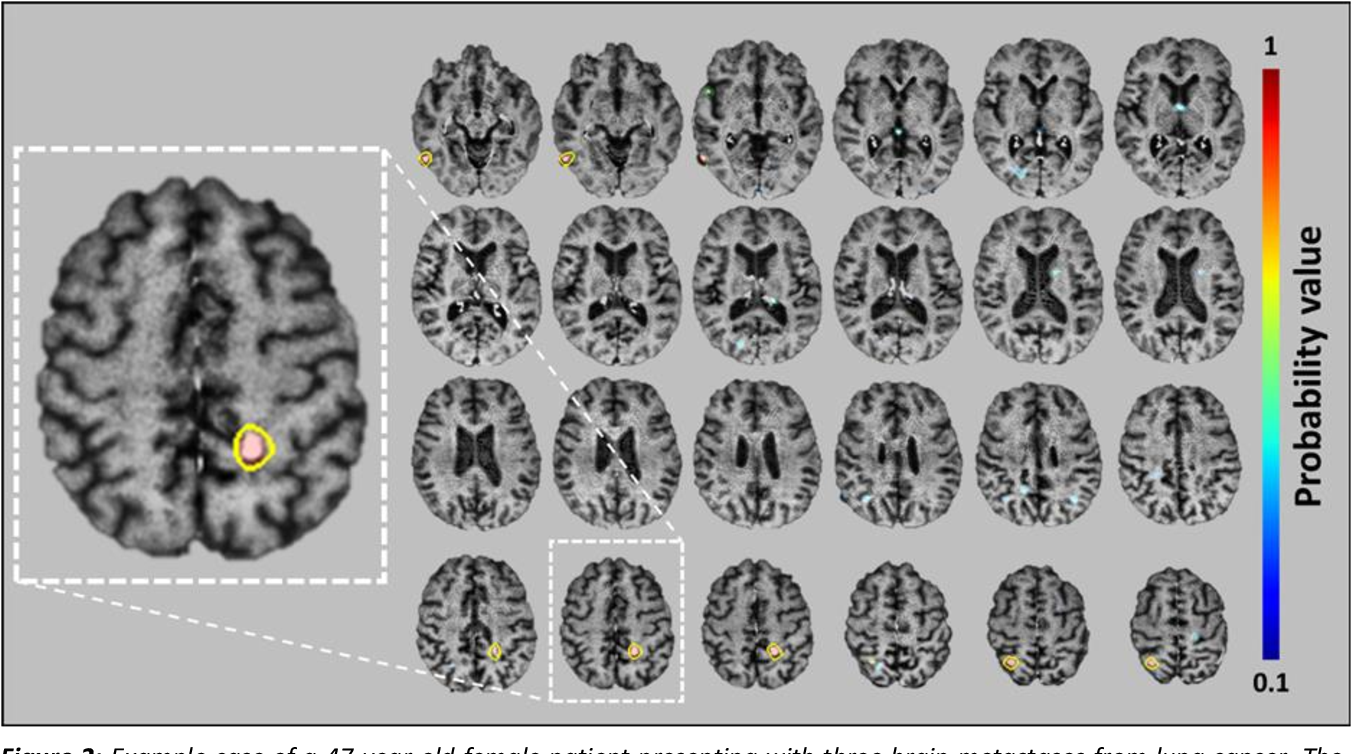 Figure 4 for Deep Learning Enables Automatic Detection and Segmentation of Brain Metastases on Multi-Sequence MRI