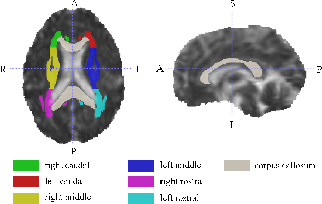 Figure 1 for Identification of relevant diffusion MRI metrics impacting cognitive functions using a novel feature selection method