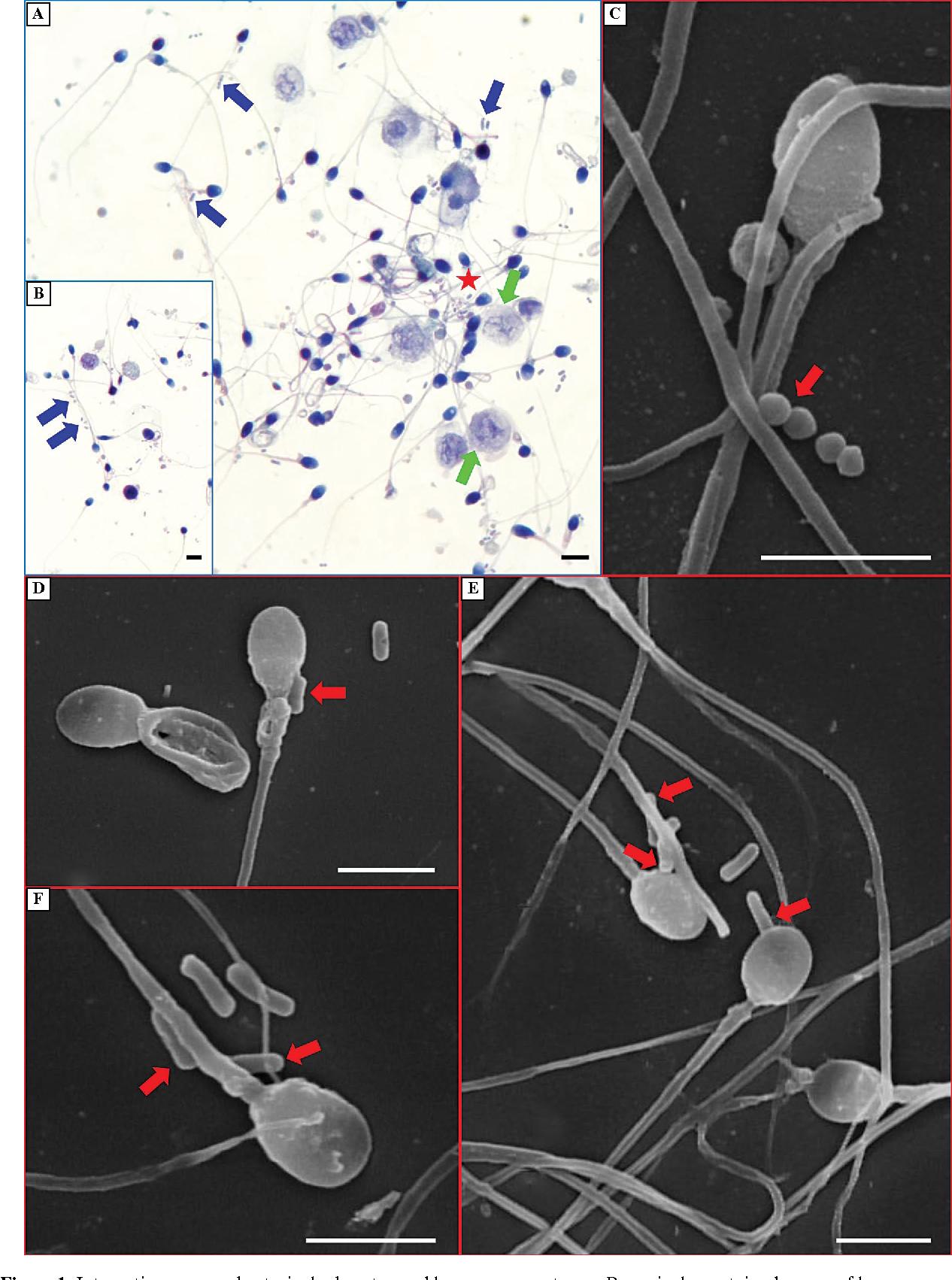 Bacteria coli sperm #2