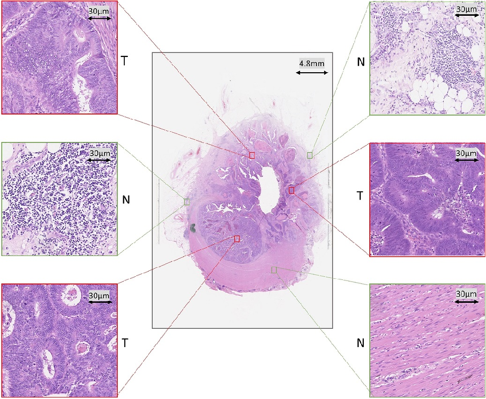 Figure 1 for Fast and Accurate Tumor Segmentation of Histology Images using Persistent Homology and Deep Convolutional Features