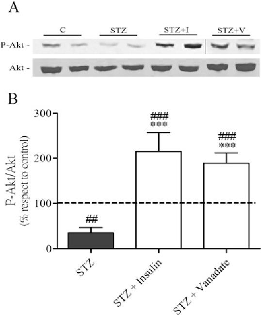 Figure 4 Effect of vanadate treatment on Akt phosphorylation in liver of STZ mice