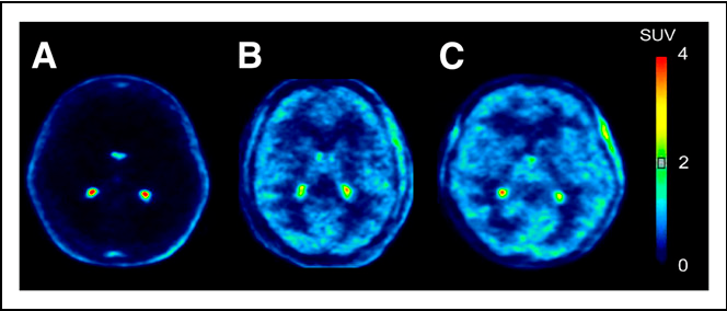 FIGURE 2. Representative images from 11C-dLop PET scans. Images are summed from 10 to 30 min after injection. Radioligand was injected either at baseline (A) or during intravenous infusion of tariquidar at doses of 2 (B) and 4 mg/kg (C).