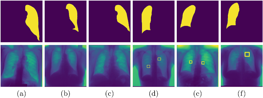 Figure 3 for Efficient Active Learning for Image Classification and Segmentation using a Sample Selection and Conditional Generative Adversarial Network