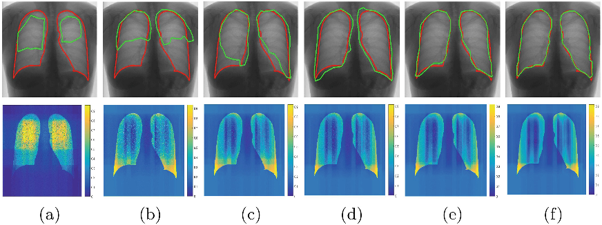 Figure 4 for Efficient Active Learning for Image Classification and Segmentation using a Sample Selection and Conditional Generative Adversarial Network
