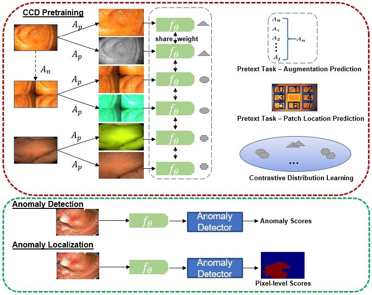 Figure 1 for Constrained Contrastive Distribution Learning for Unsupervised Anomaly Detection and Localisation in Medical Images