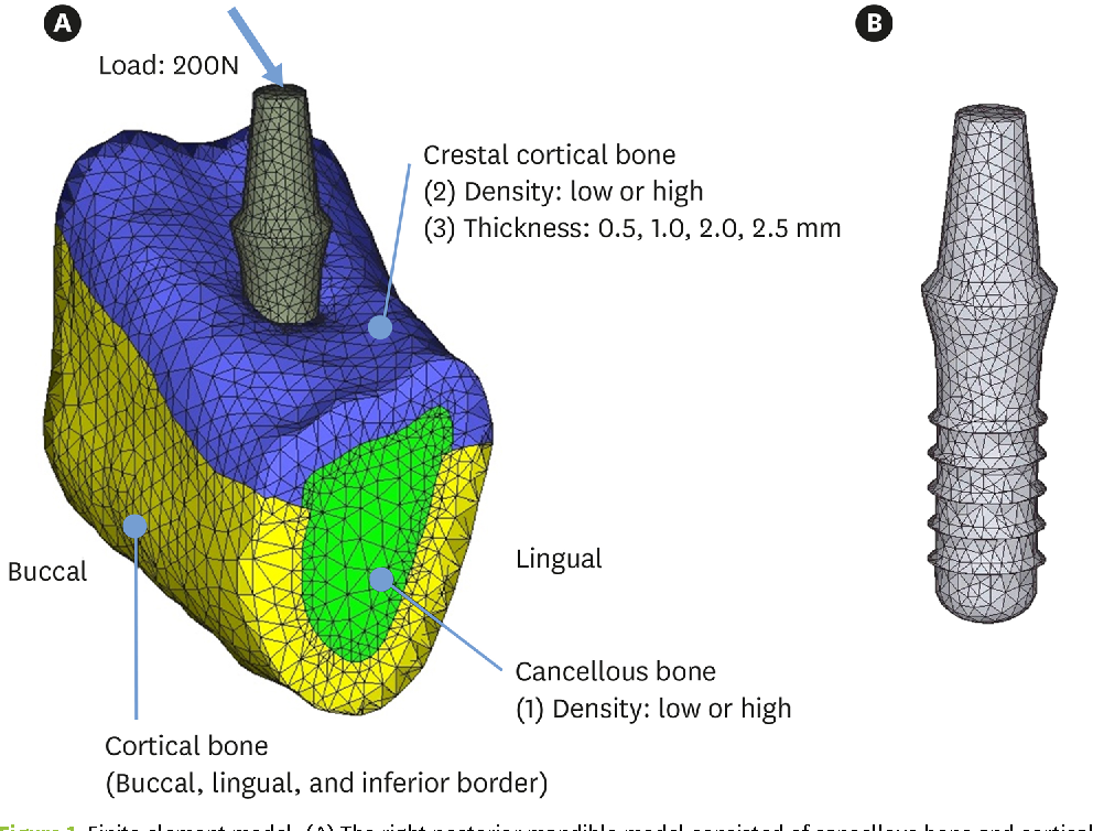 The Effects Of Bone Density And Crestal Cortical Bone Thickness On