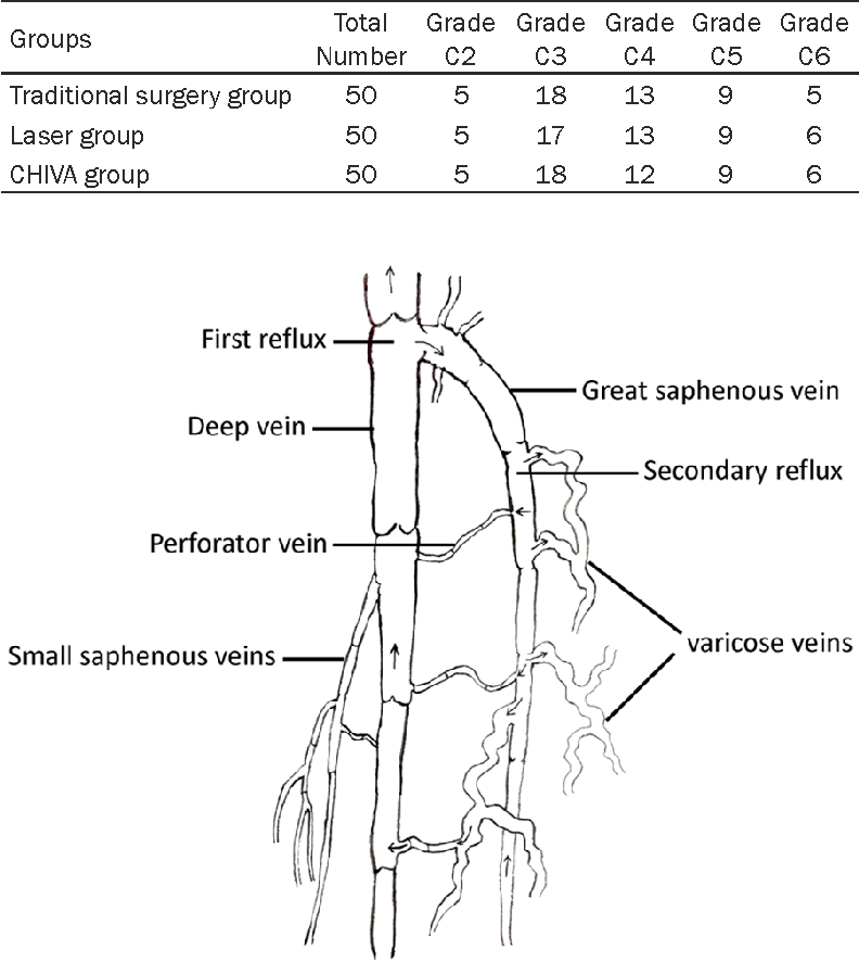 Figure 1 From Hemodynamic Classification And Chiva Treatment Of