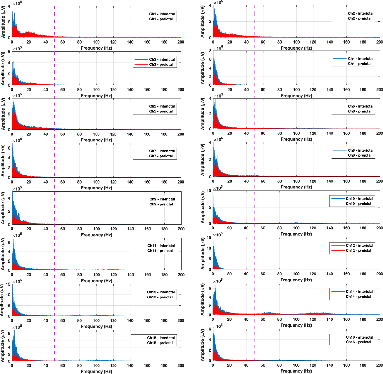 Figure 3 for Human Intracranial EEG Quantitative Analysis and Automatic Feature Learning for Epileptic Seizure Prediction