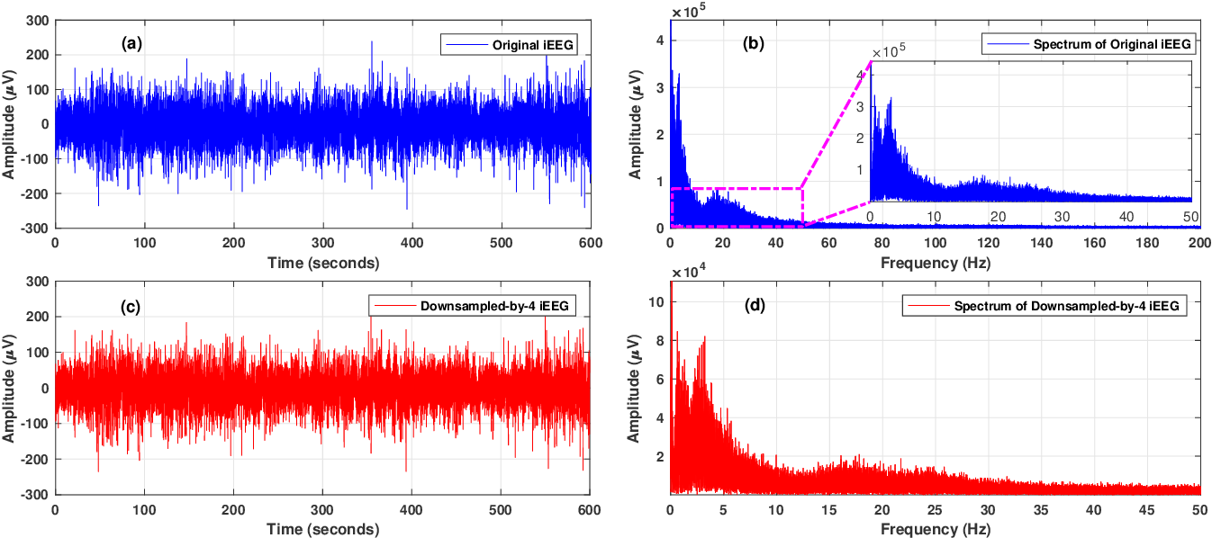 Figure 4 for Human Intracranial EEG Quantitative Analysis and Automatic Feature Learning for Epileptic Seizure Prediction