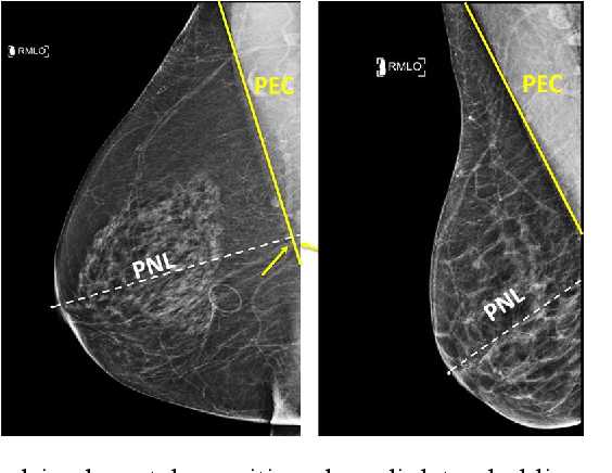 Figure 1 for Deep Learning-Based Automatic Detection of Poorly Positioned Mammograms to Minimize Patient Return Visits for Repeat Imaging: A Real-World Application
