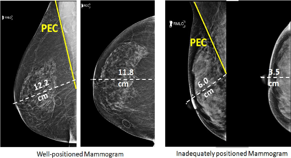 Figure 2 for Deep Learning-Based Automatic Detection of Poorly Positioned Mammograms to Minimize Patient Return Visits for Repeat Imaging: A Real-World Application