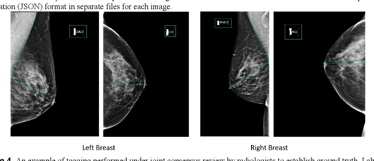 Figure 4 for Deep Learning-Based Automatic Detection of Poorly Positioned Mammograms to Minimize Patient Return Visits for Repeat Imaging: A Real-World Application