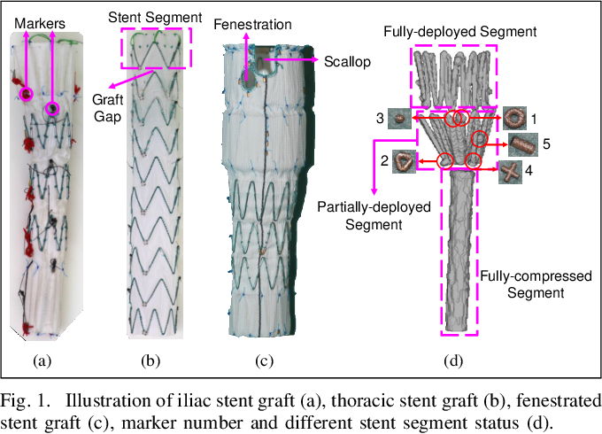 Figure 1 for Real-time 3D Shape Instantiation for Partially-deployed Stent Segment from a Single 2D Fluoroscopic Image in Robot-assisted Fenestrated Endovascular Aortic Repair