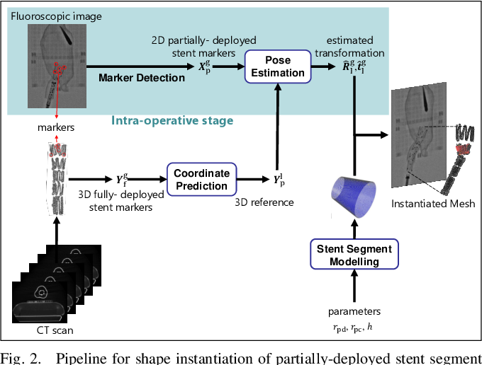 Figure 3 for Real-time 3D Shape Instantiation for Partially-deployed Stent Segment from a Single 2D Fluoroscopic Image in Robot-assisted Fenestrated Endovascular Aortic Repair