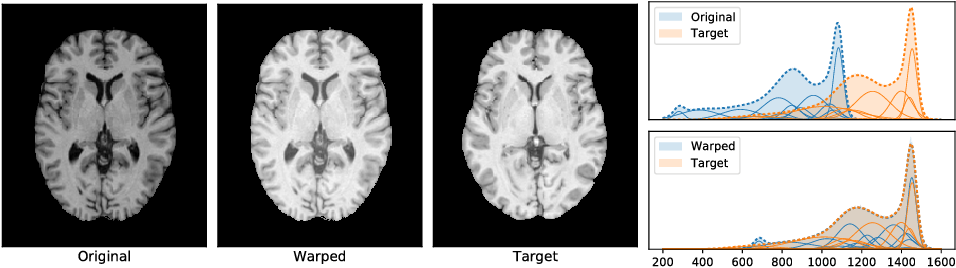 Figure 1 for Nonparametric Density Flows for MRI Intensity Normalisation