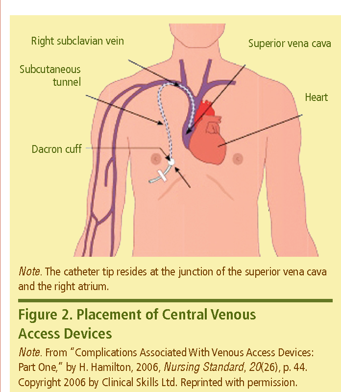 Figure 2 From Restoring Patency To Central Venous Access Devices