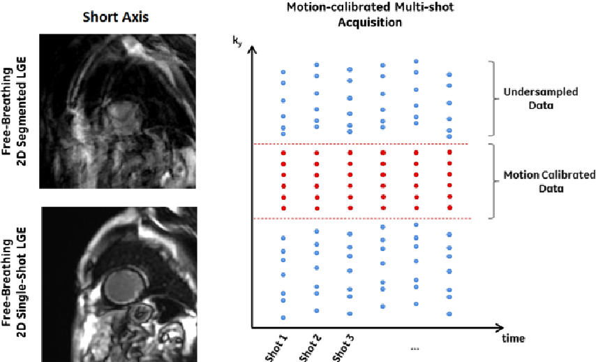 Figure 1 for Motion Estimated-Compensated Reconstruction with Preserved-Features in Free-Breathing Cardiac MRI