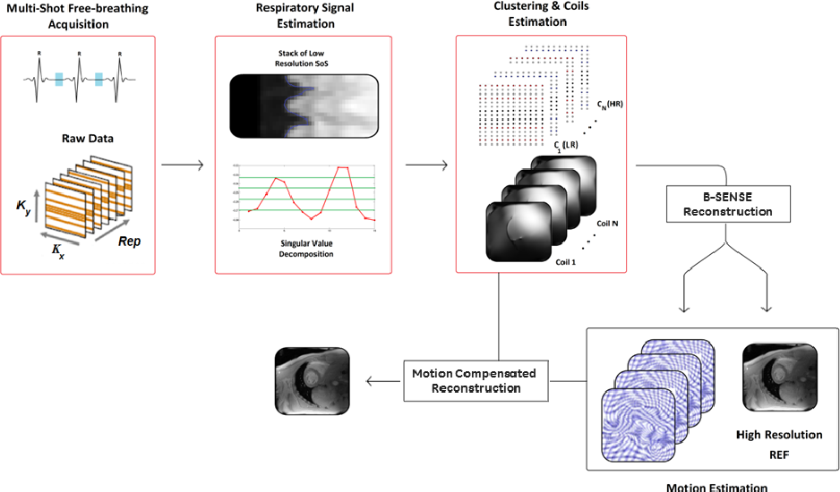 Figure 3 for Motion Estimated-Compensated Reconstruction with Preserved-Features in Free-Breathing Cardiac MRI