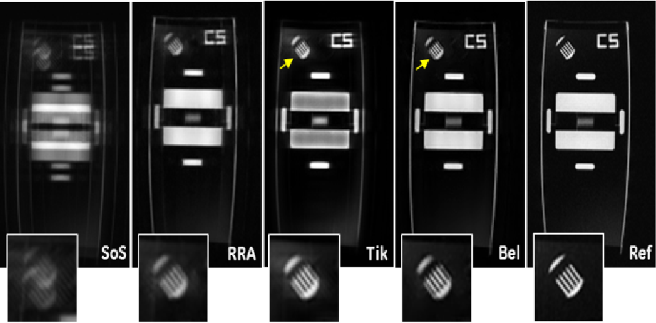 Figure 4 for Motion Estimated-Compensated Reconstruction with Preserved-Features in Free-Breathing Cardiac MRI