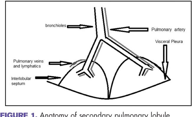Figure 1 From Multiple Pulmonary Nodules In Malignancy Semantic
