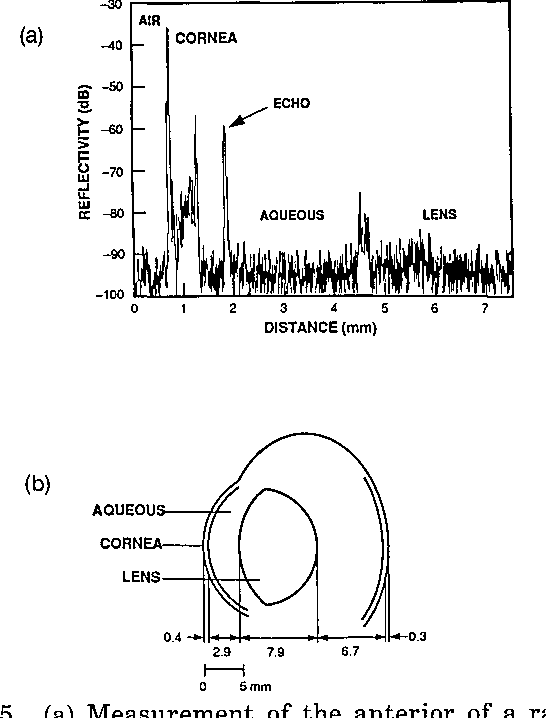Figure 5 From High Speed Optical Coherence Domain Reflectometry