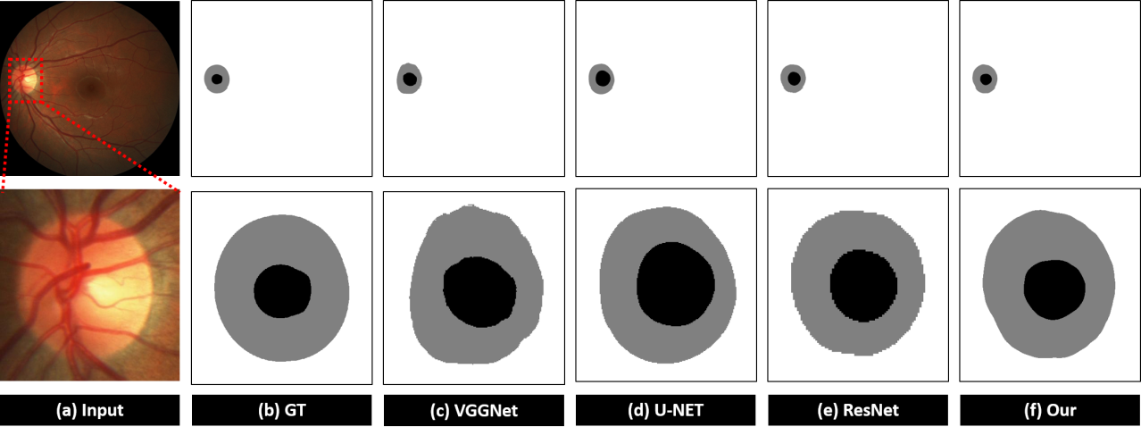 Figure 4 for Automated Segmentation of the Optic Disk and Cup using Dual-Stage Fully Convolutional Networks