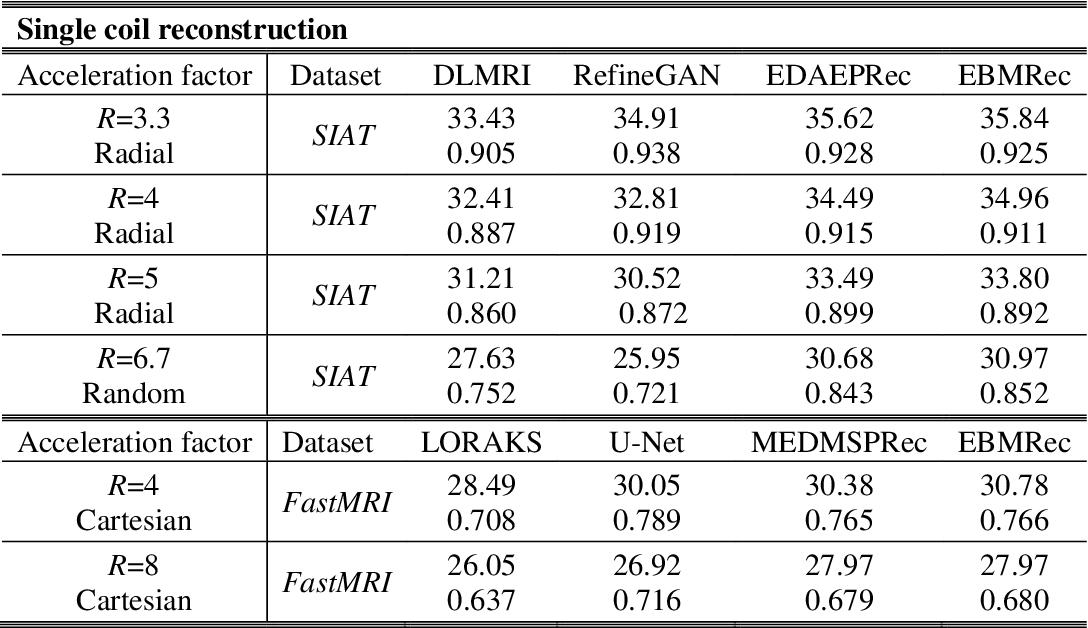 Figure 2 for MRI Reconstruction Using Deep Energy-Based Model