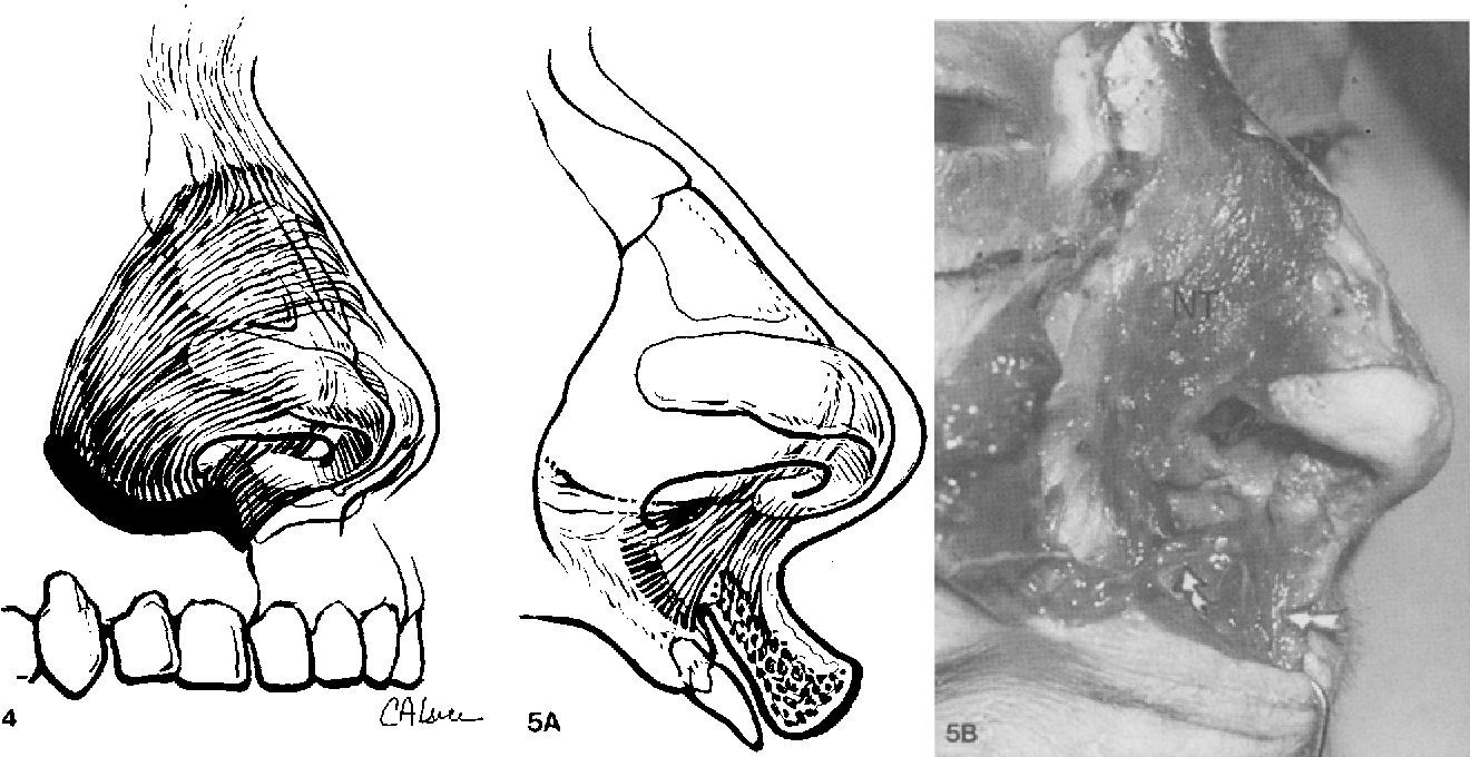 Figure 4 from Nasal anatomy: The muscles and tip sensation ...