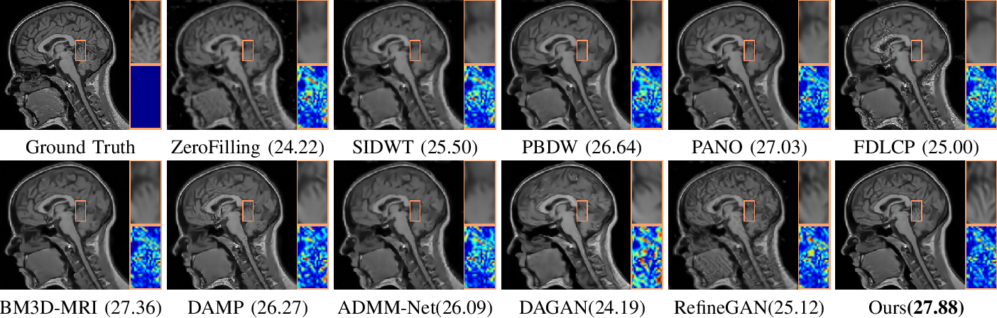Figure 2 for Converged Deep Framework Assembling Principled Modules for CS-MRI