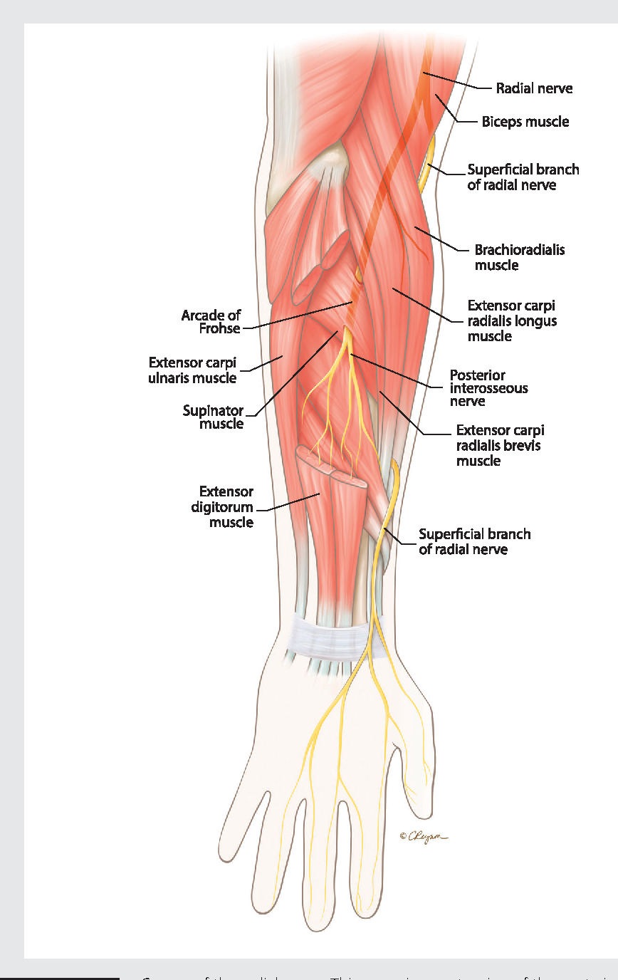 Figure 5-7 from Peripheral nerve injury in sports. - Semantic Scholar