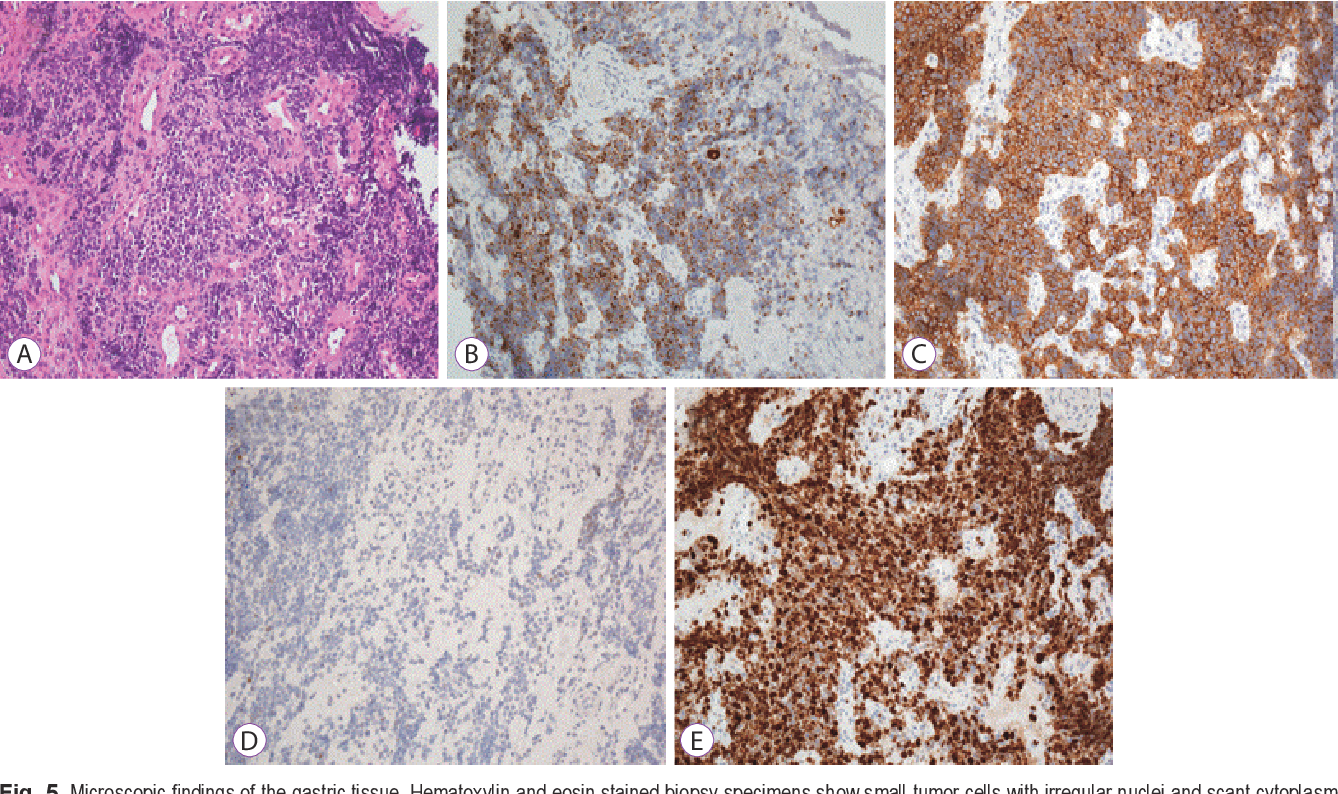 Figure 5 from Primary Gastric Small Cell Carcinoma