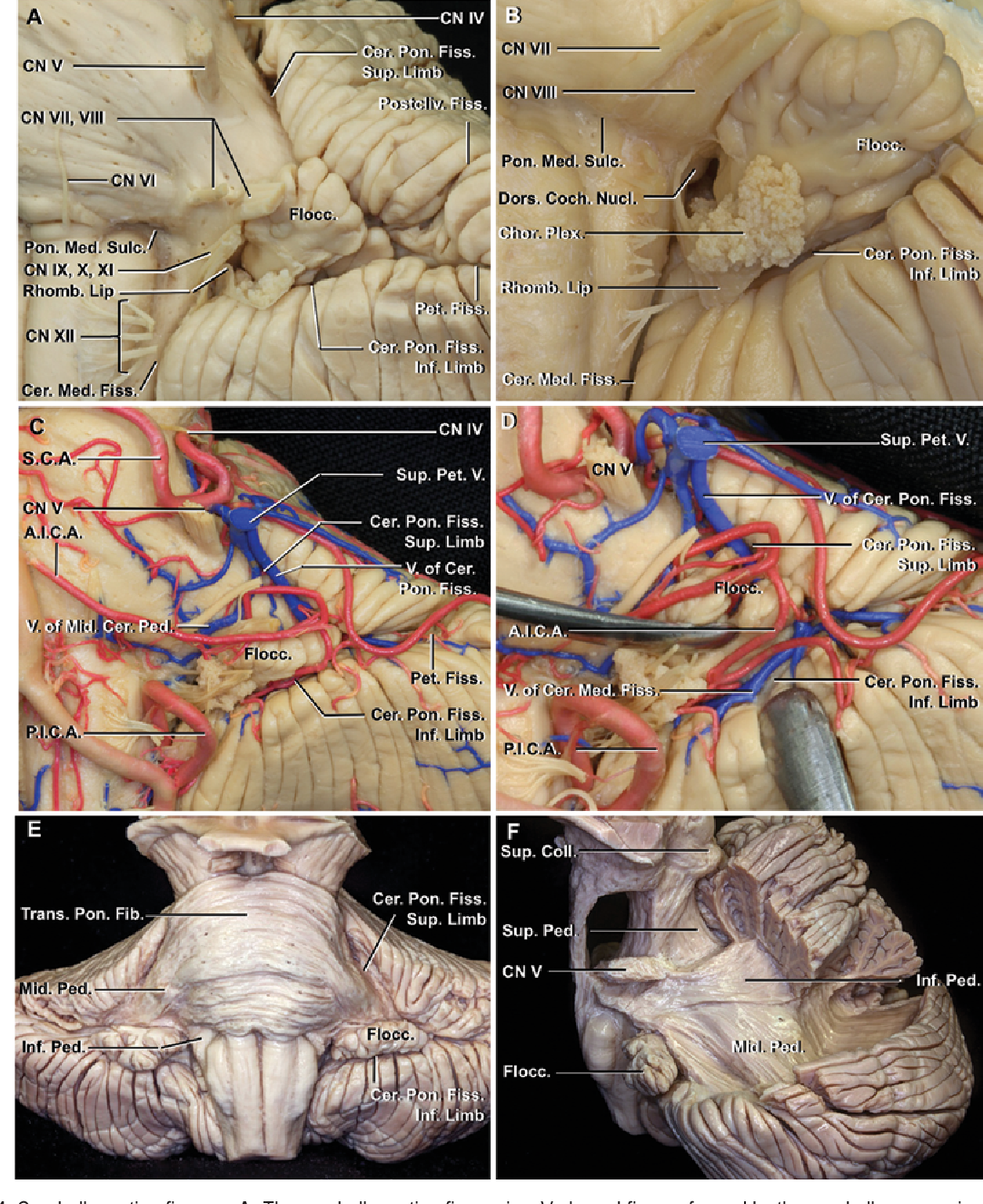 Figure 4 from Anatomy and approaches along the cerebellar-brainstem ...