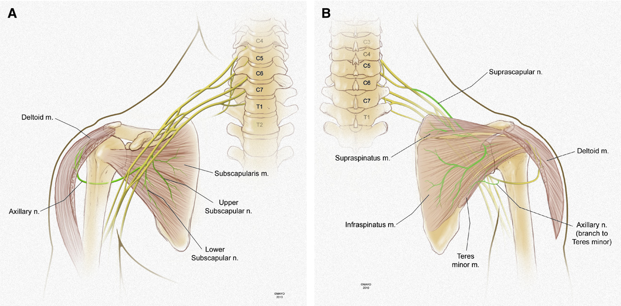 Figure 1 From Rotator Cuff Tears With Cervical Radiculopathy
