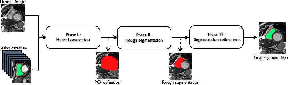 Figure 3 for Automatic Right Ventricle Segmentation using Multi-Label Fusion in Cardiac MRI