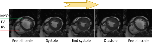 Figure 1 for FOAL: Fast Online Adaptive Learning for Cardiac Motion Estimation