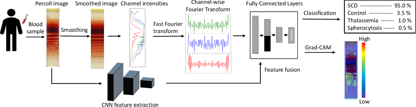 Figure 1 for Fourier Transform of Percoll Gradients Boosts CNN Classification of Hereditary Hemolytic Anemias