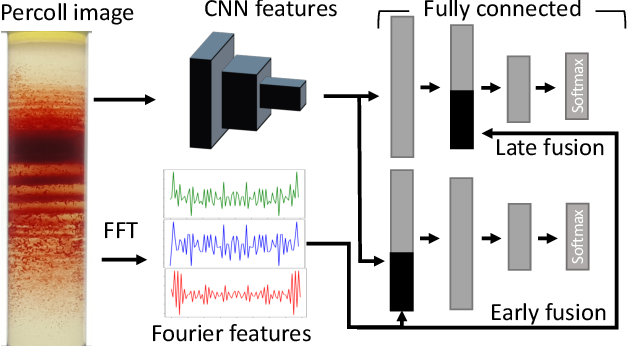 Figure 2 for Fourier Transform of Percoll Gradients Boosts CNN Classification of Hereditary Hemolytic Anemias