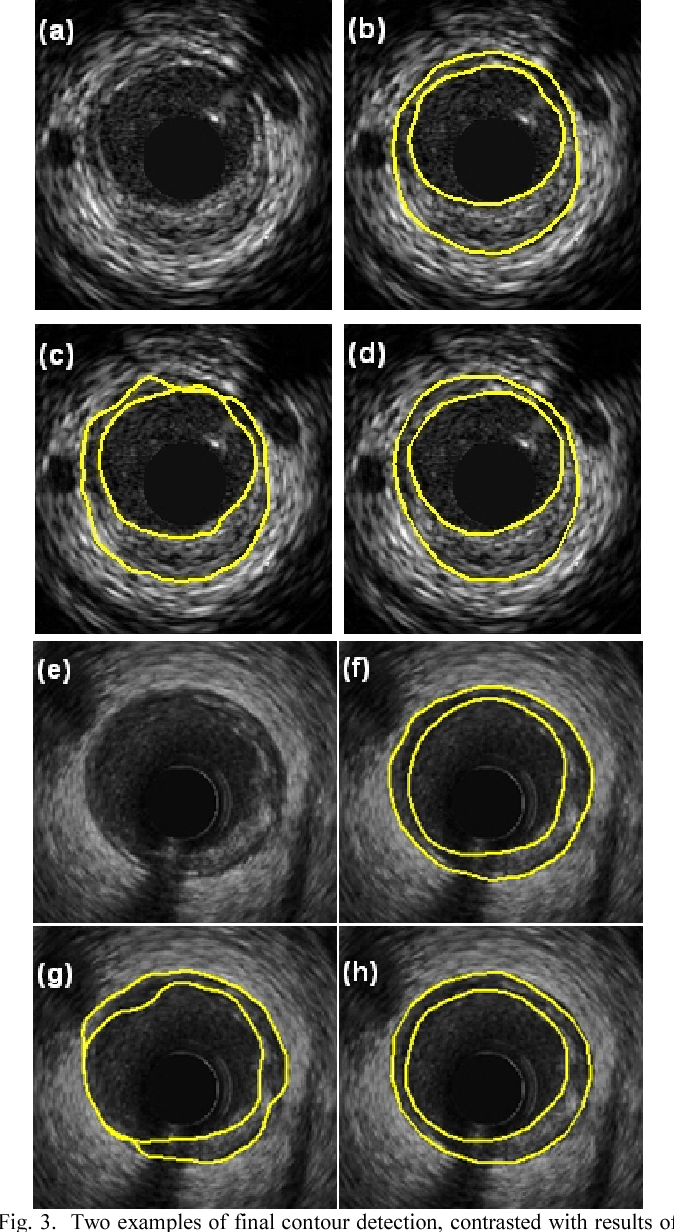 Contour detection of atherosclerotic plaques in IVUS images using ...
