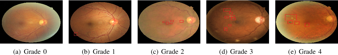 Figure 1 for Multi-Cell Multi-Task Convolutional Neural Networks for Diabetic Retinopathy Grading