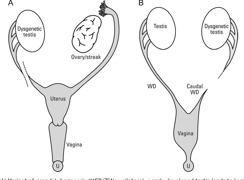 The anatomy of the caudal vas deferens in patients with a genital ...