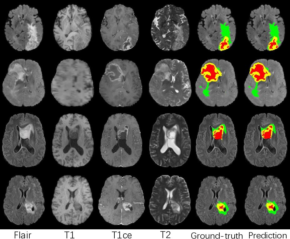 Figure 3 for Modality-Pairing Learning for Brain Tumor Segmentation