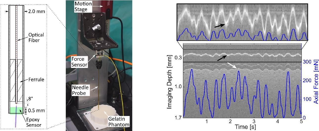 Figure 1 for A novel optical needle probe for deep learning-based tissue elasticity characterization
