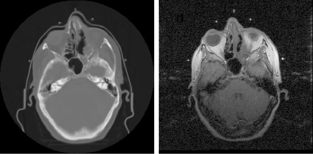 Figure 16. CT (left) and MRI (right) images of brain.