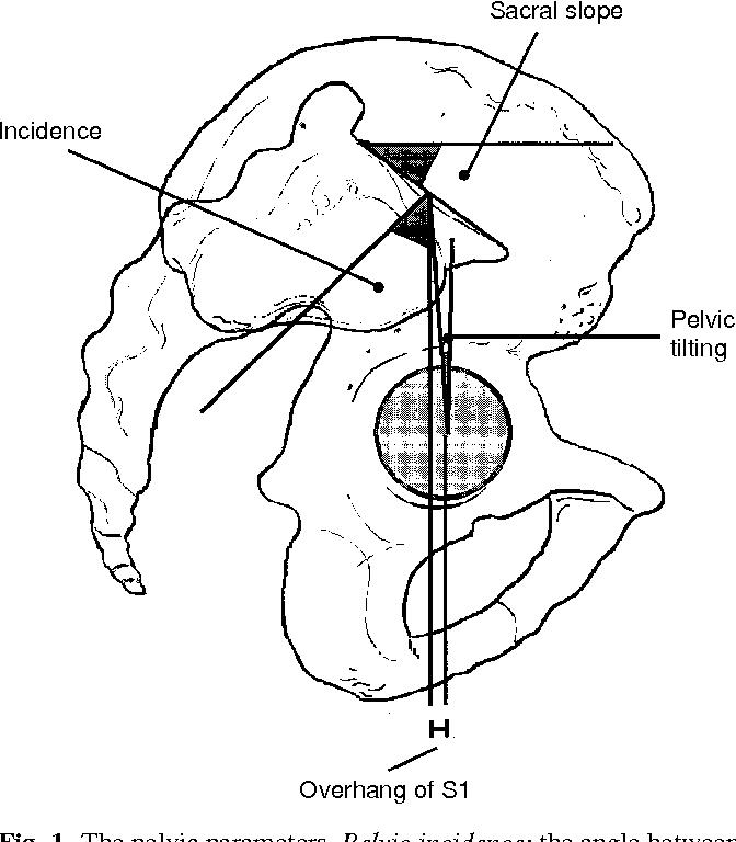 Figure 1 From Pelvic Incidence A Fundamental Pelvic Parameter For
