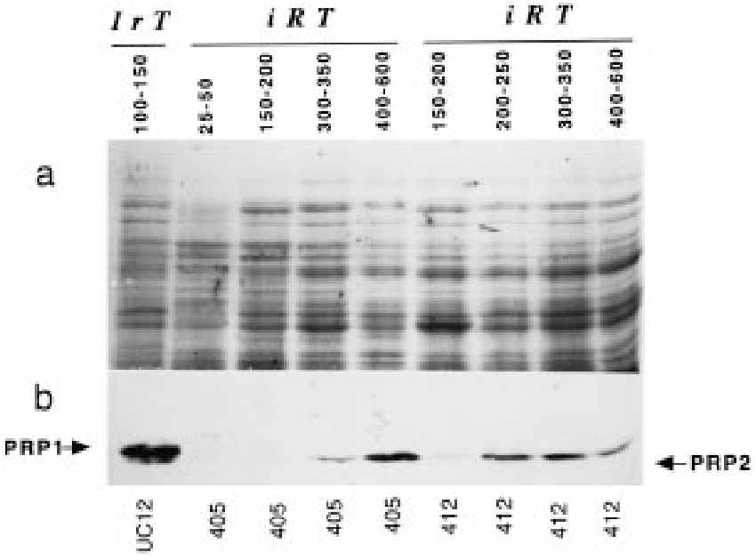 Figure 4 From A Defective Seed Coat Pattern Net Is Correlated With