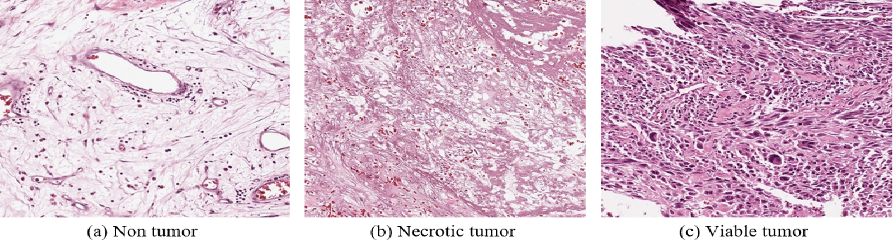 Figure 1 for A Deep Learning Study on Osteosarcoma Detection from Histological Images
