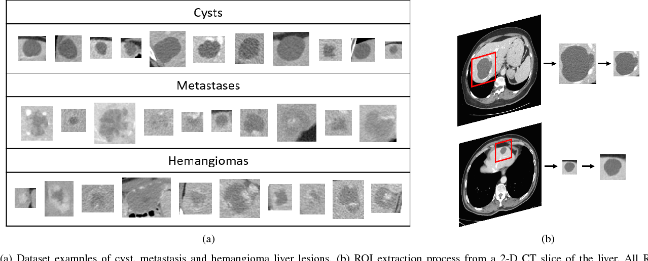 Figure 1 for GAN-based Synthetic Medical Image Augmentation for increased CNN Performance in Liver Lesion Classification